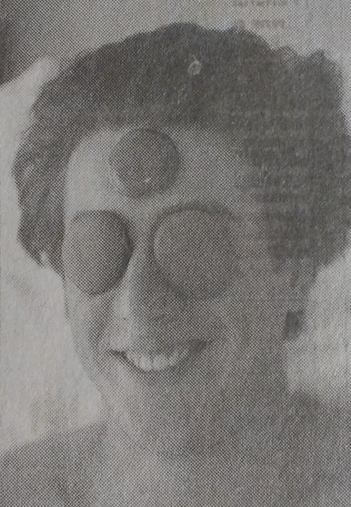 Fabricio Rocha com pedras quentes no rosto em foto de jornal